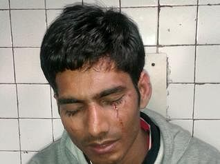 Ram Karan Singh lost his eyesight due to brutality at police station
