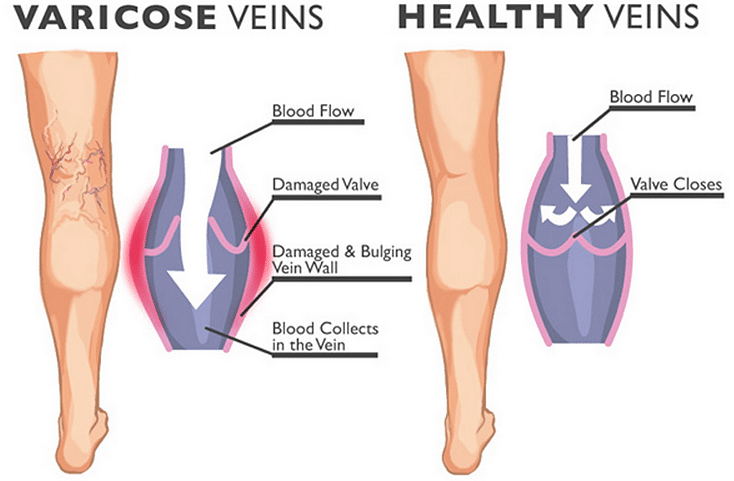The do's and dont's of how to deal with varicose veins
