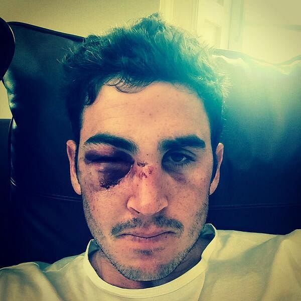 Craig Kieswetter suffers gruesome facial injury