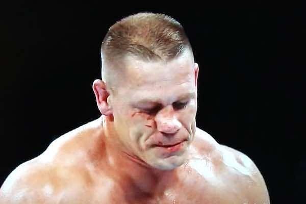 Graphic image of John Cena's broken nose, backstage update on his injury