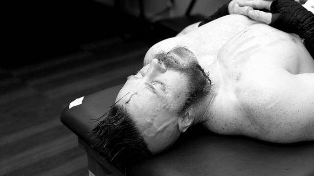 Graphic video: Sheamus receives medical attention backstage after his match